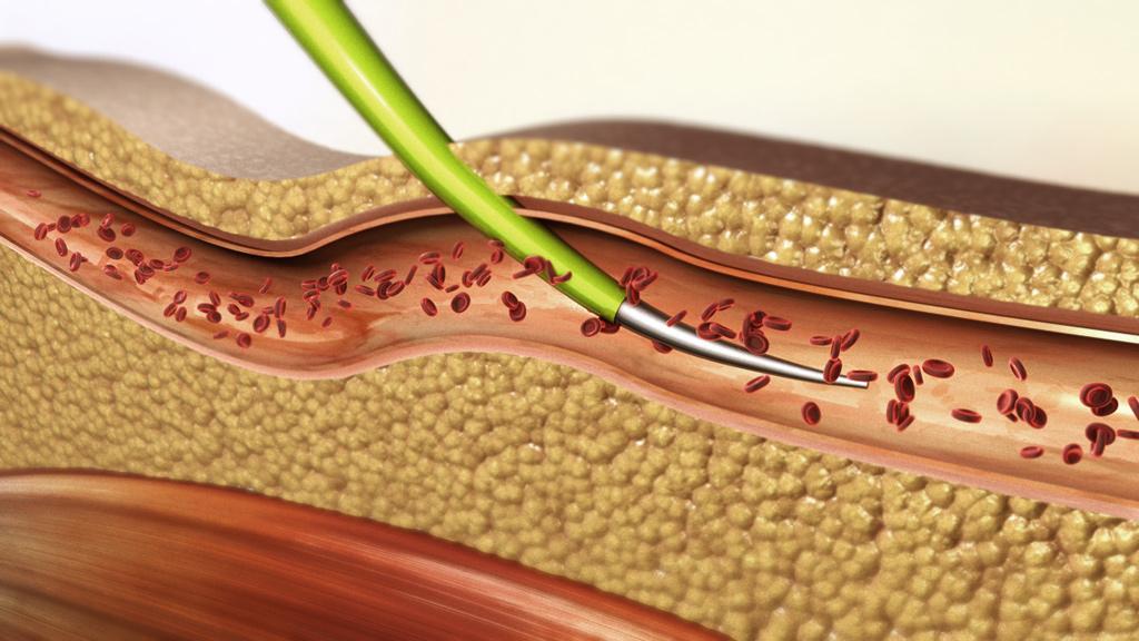 2009 – Human tissue